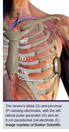Implantable Cardioverter Defibrillator - Indications ... |Defibrillator Surgery Risks