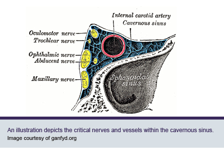 An illustration depicts the critical nerves and vessels within the cavernous sinus.